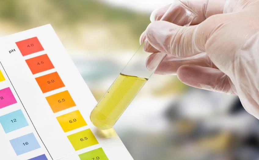 Analisi dell'urina, perché farla?