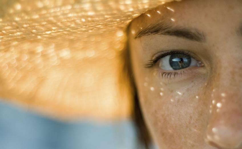 Macchie solari: come curarle